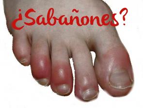 Sabañones